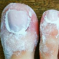 Не стригите грибковые ногти! Он выводится мгновенно: возьмите обычный, густой...